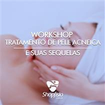 Workshop Tratamento De Pele Acneica E Suas Sequelas