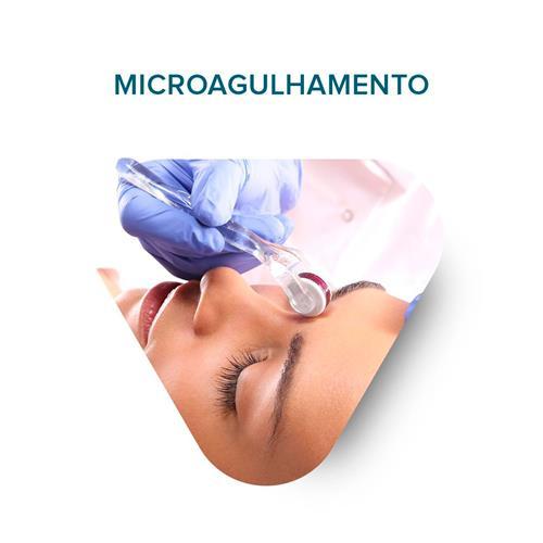 Workshop Microagulhamento - 23/04/2018