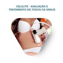 Workshop Celulite - Avaliação E Tratamento De Todos Os Graus - 29/01/2018