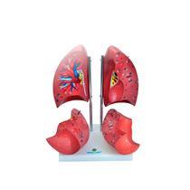 Pulmão Segmentado Em 4 Partes Para Anatomia - Sdorf Scientific