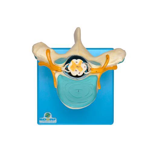 Vértebra Torácica Com Cordão Espinhal Para Treino - Sdorf Scientific