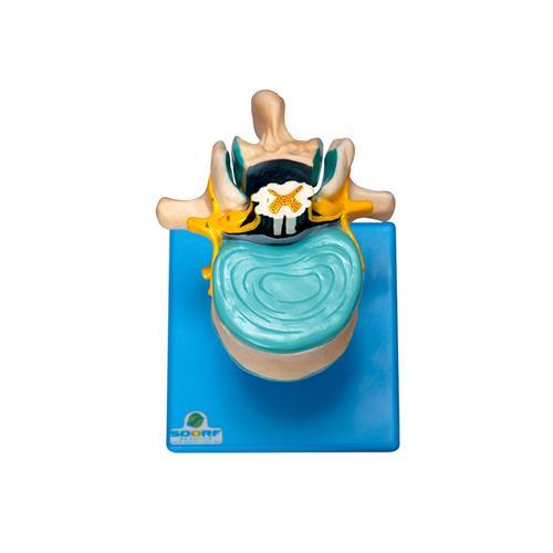 Vértebra Lombar Com Cordão Espinhal, Nervo E Cauda Equina - Sdorf Scientific